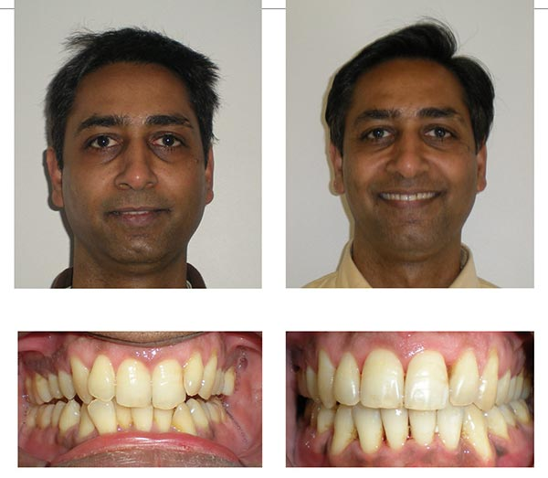 Orthodontic before and after pictures